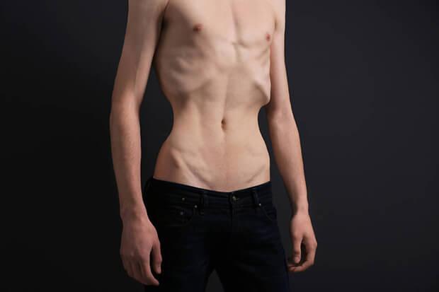 痩せすぎ体質の「太れない原因」とは?