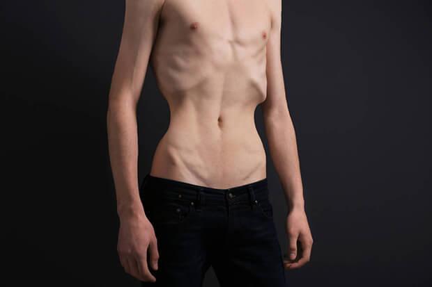 太れない男の原因